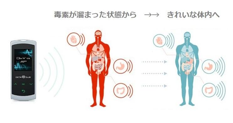 簡単にデトックスできる、バイオレゾナンス波動医学療法