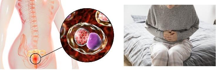子宮の健康を取り戻す、データエリスのバイオレゾナンス